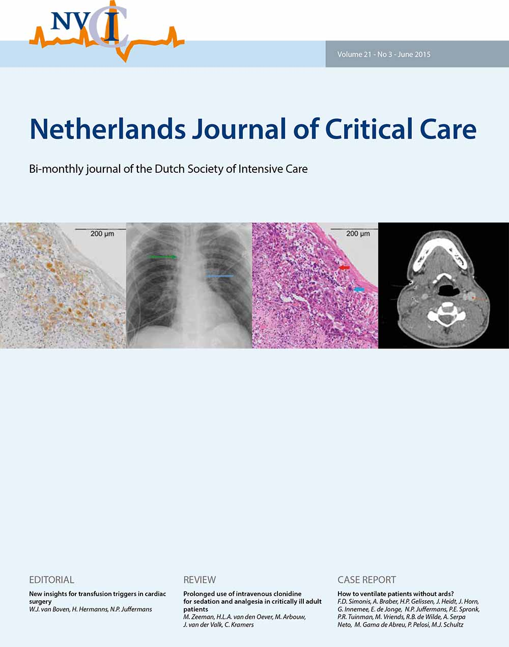 Issues | The Netherlands Journal of Critical Care (NJCC)